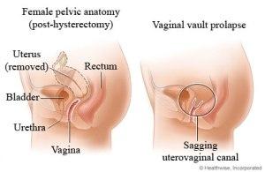 Vaginal prolapse